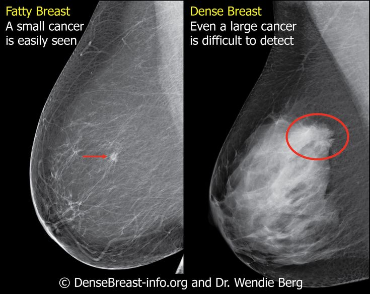 What does breast cancer look like-4273