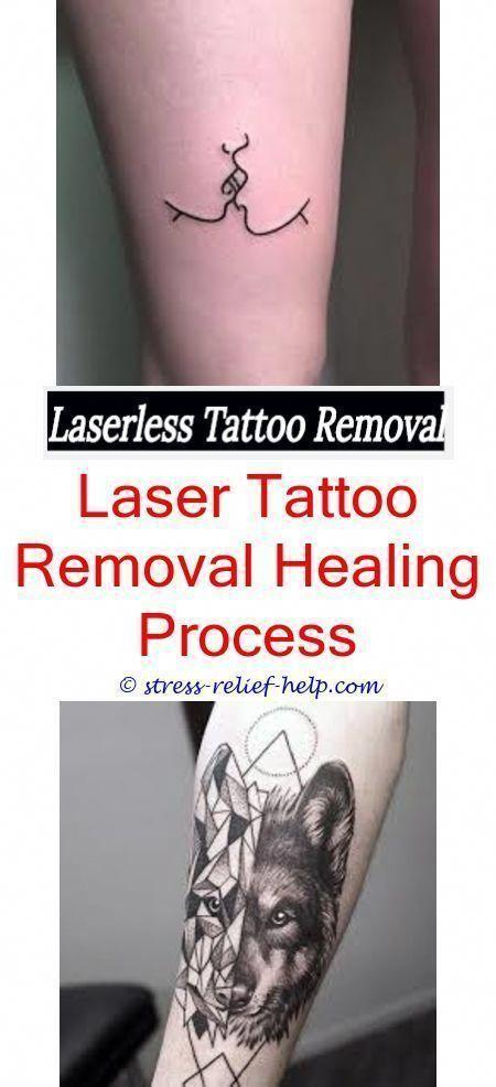 black tattoo removal best tattoo removal 2018 - tattoo removal ...