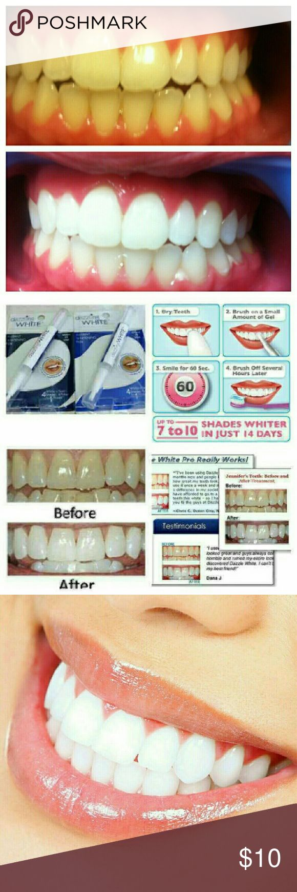 (2) Instant Teeth whitening Pens You receive two, good for 50 uses each. Accessories