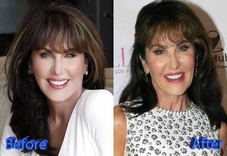 Robin Mcgraw Before And After Plastic Surgery Celebrity Plastic