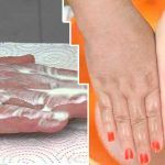 Las manos, al igual que cualquier otra parte del cuerpo, están expuestas a muchos factores que pudieran mancharlas. La exposición al sol, la edad avanzada y muchos otros factores pudieran ser la causa de este mal.Sin embargo, existen muchos otros factores que pueden hacer que las manchas no salgan prematuramente. ...
