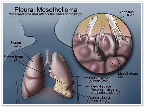 Masothelioma that affects the lining of the lung