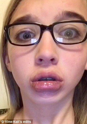 Twitter saw worldwide takeover with the #kyliejennerchallenge. Young people everywhere tried the DIY version to plump their lips in attempts to imitate Kylie Jenner. Unfortunately the DIY lip enlargement had epic fail proportions, with many youths being left with bruised lips and bleeding gums. Jenner took to twitter to encourage young people everywhere to be themselves.