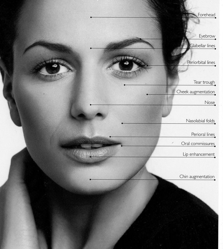 TIP: Reviewing before and after photos helps you determine physician's skill in administering dermal fillers.