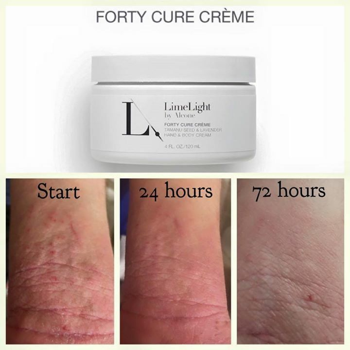atopic dermatitis, contact dermatitis, and eczema, itchy skin all natural products