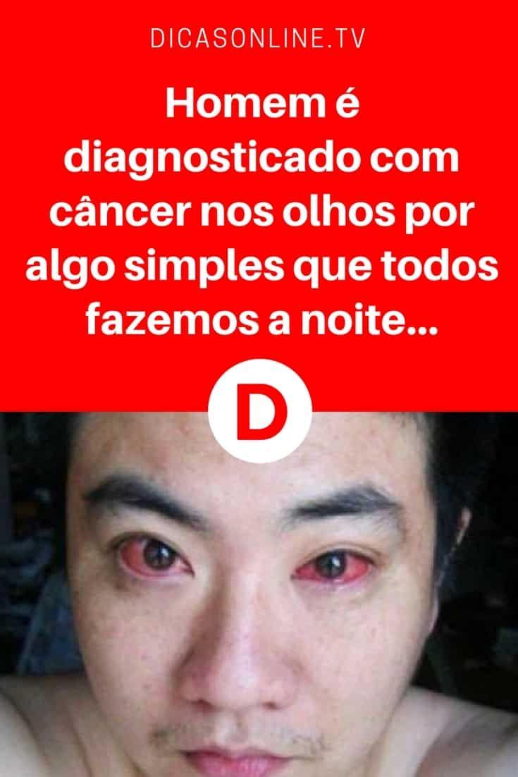 Cuidar dos olhos | Homem é diagnosticado com câncer nos olhos por algo simples que todos fazemos a noite...