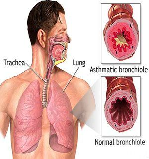 Natural Treatment For Wheezing