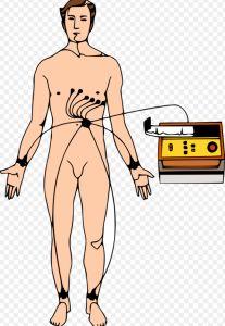 Qué es el Electrocardiograma (ECG/EKG)?