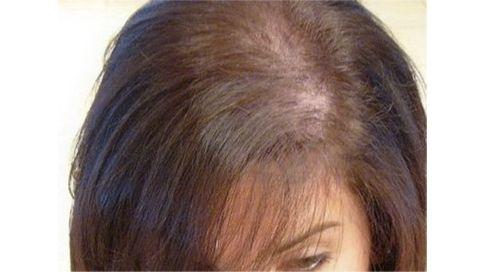 Au secours, je perds mes cheveux #MonSiteBeauté