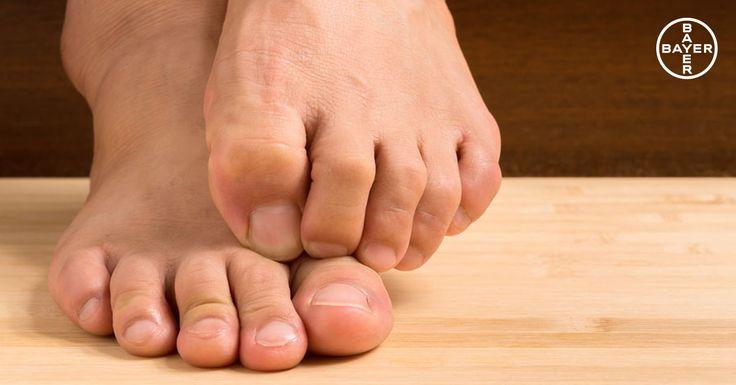 """Si has tenido alguna vez pie de atleta, quizás te suene la palabra """"intertriginosa"""". Pero, ¿a qué se refiere? Cuando los hongos de los pies afectan a la zona entre los dedos, hablamos de pie de atleta en su forma intertriginosa. Aprende más sobre pie de atleta en el post."""