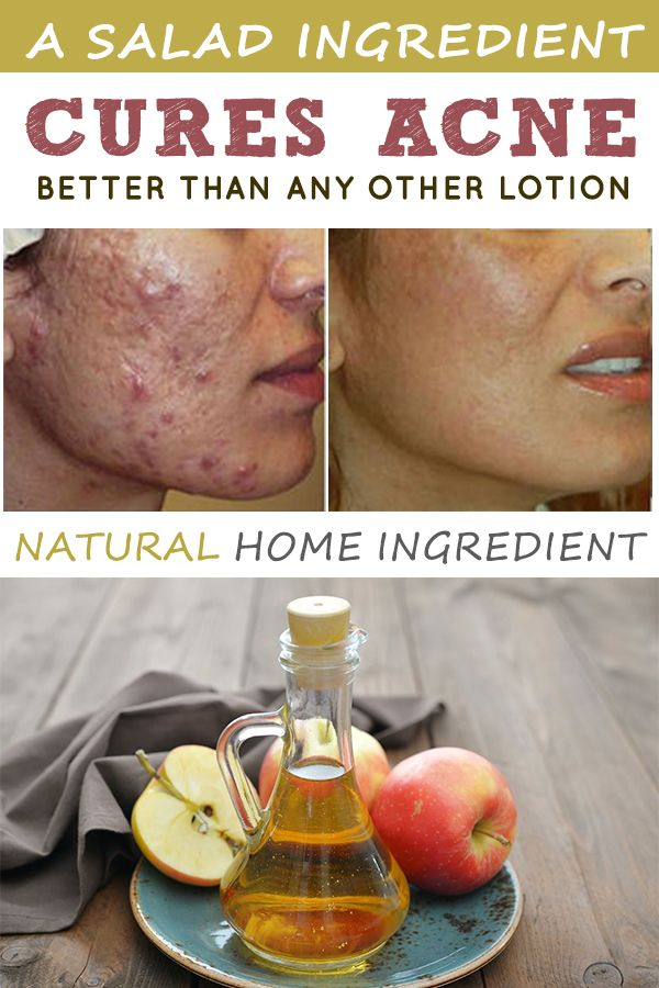 A salad ingredient cures acne better than any other lotion