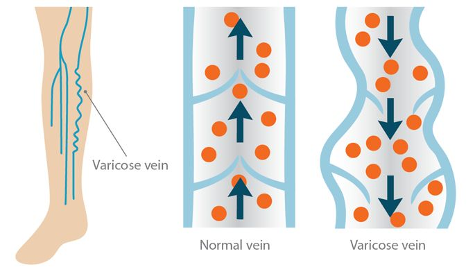 It's Time To Rethink Varicose Veins! #ad