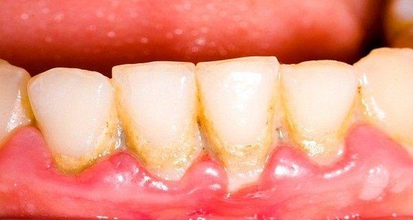 Egy evőkanál naponta megmenti a fogaid, – eltávolítja a plakkot nagyon egyszerű és természetes módon - MindenegybenBlog