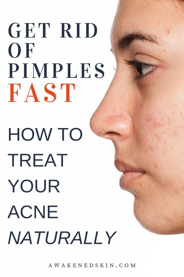 How To Zap Pimples Fast 8 Proven Natural Acne Treatments How To