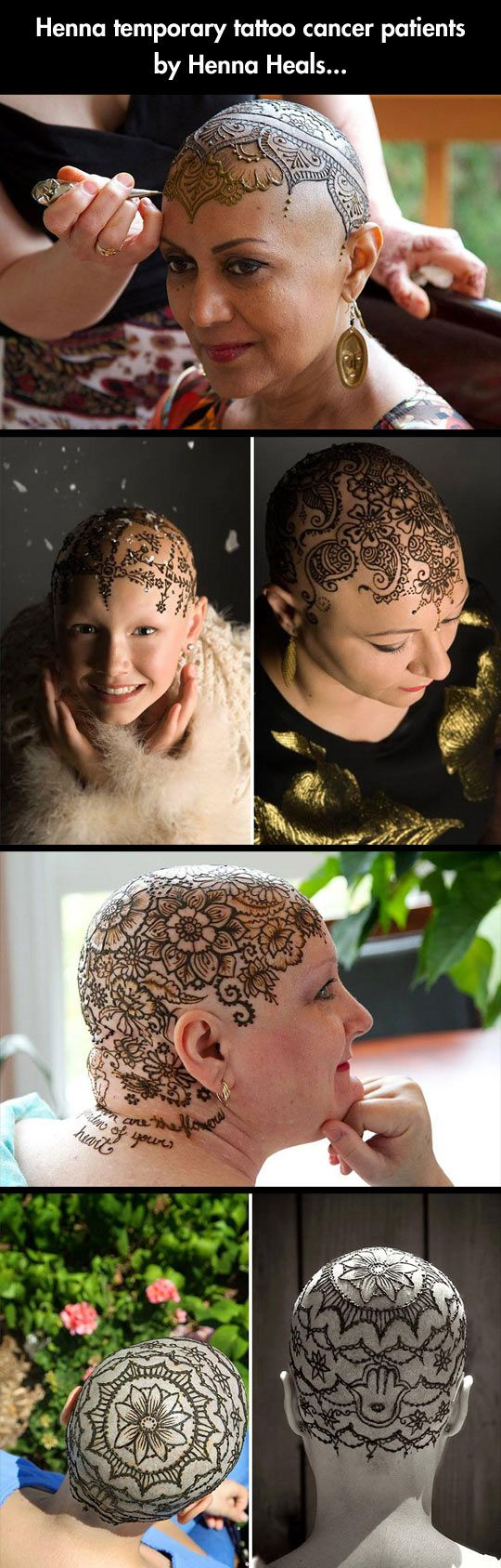 If I were a cancer patient & had to go bald I would totally do this! Just temporary though! & I would still have a wig...