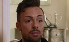Inglaterra: Gay es adicto al botox por culpa de un ataque homófobo