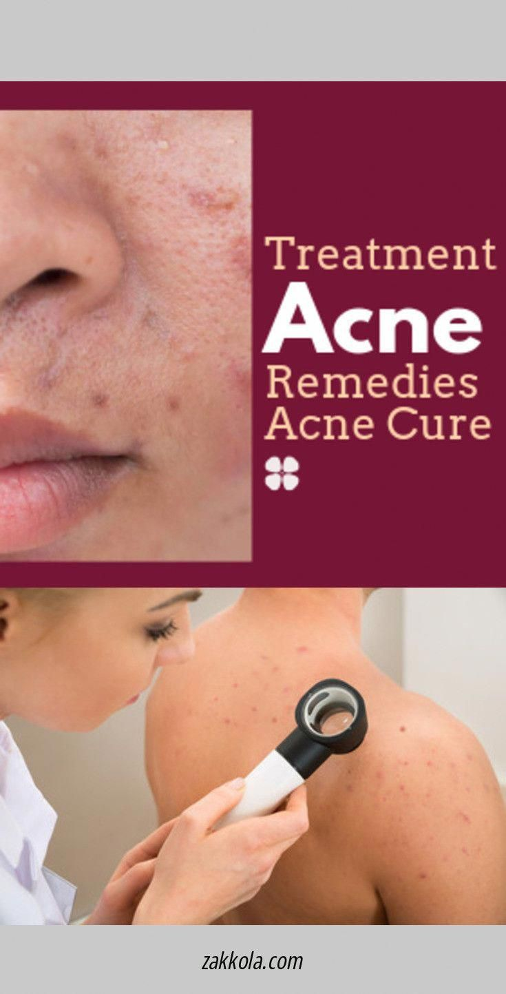 How To Get Rid Of Acne Howtogetridofacne Acne Remedies Back Acne Treatment Acne Treatment