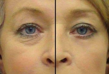 Vive Por Mas Tiempo: Un aceite Super Serum De Sólo 2 Ingredientes: El mejor remedio casero contra las arrugas alrededor de los ojos - Receta!