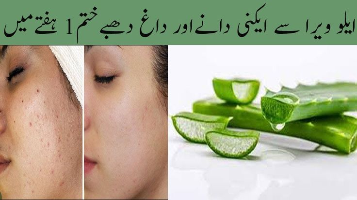 Remove Acne Pimples Black Spots Just In 10 Minutes With Aloe Vera Gel