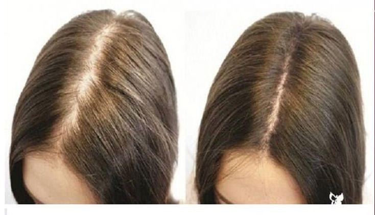2 Bitki İle Saçınız Dökülmeyecek Ve Tekrar Çıkacak