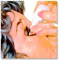 glaucoma-terapia
