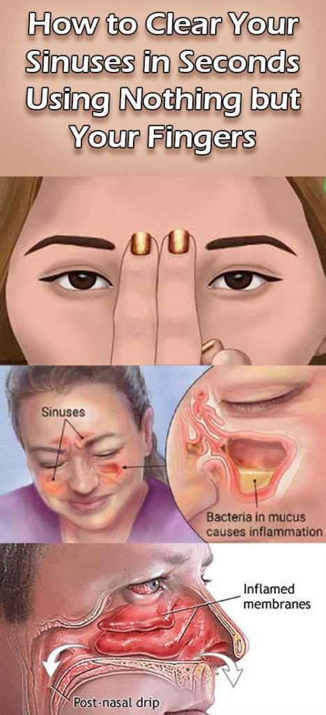 How to Clear Your Sinuses in Seconds Using Nothing but Your Fingers – Medi Idea