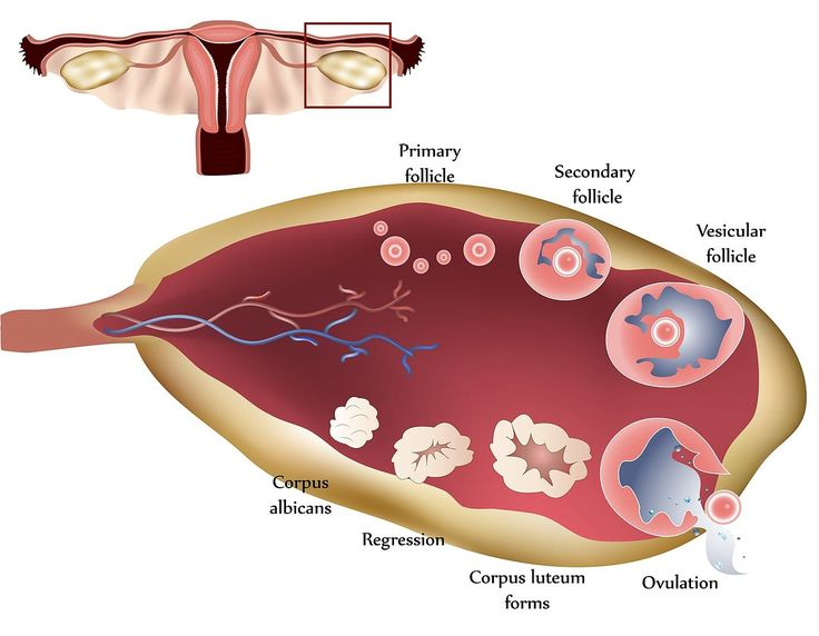 PCOS AND PCOD