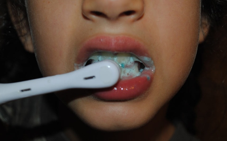 Dental crowns have been in existence inside the field of dentistry for a very long time and their utility in children and grown ups continues to be incontestable within dentistry.