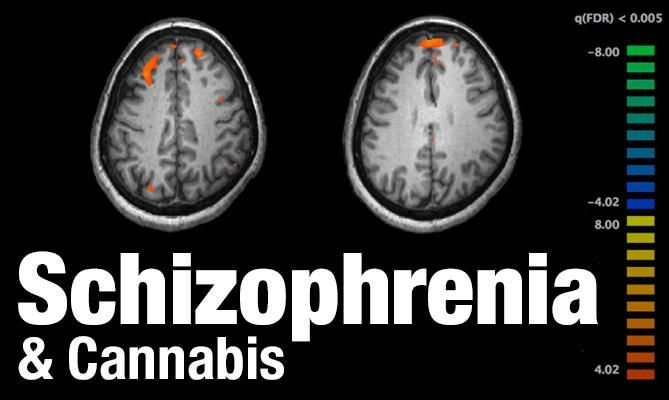 Brazilian Study: Cannabis Therapy May Help Treat Schizophrenia - For years the faulty argument has been made that cannabis causes and/or increases the likelihood of schizophrenia. Of course, much of this position has already been debunked in one way or another. A study published in 2004 determined that cannabis can help counter psychosis; another study published last year found that cannabidiol (CBD) can help improve cognitive function in schizophrenic individuals.