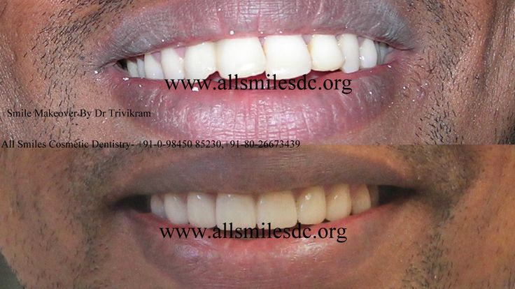 Best Cosmetic dentist Bangalore offers Stunning Smile makeovers-.smile makeover cost smile makeover pictures smile makeover center smile makeover cost in india smile makeover options  Any adult with gaps, crooked teeth, oversized, small teeth, dark teeth, protruding or fractured teeth is a candidate for smile makeover. Teeth can be straightened without braces/orthodontic treatment in seven days in 2 visits.https://www.facebook.com/Allsmilescosmeticdentistry/photos_albums
