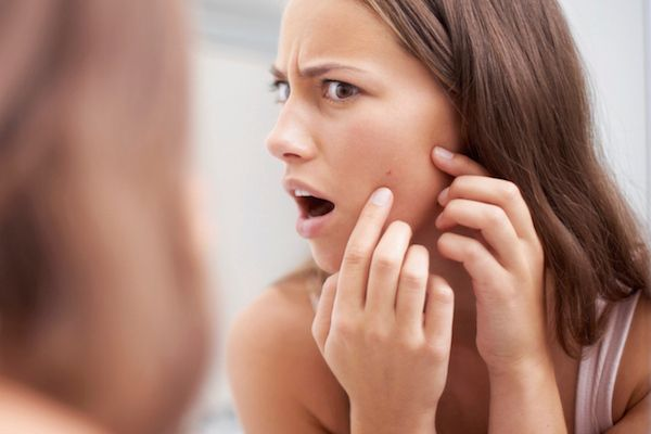 5 Ways to Shrink an Under-the-Skin Mega Zit in 5 Minutes | Beauty High