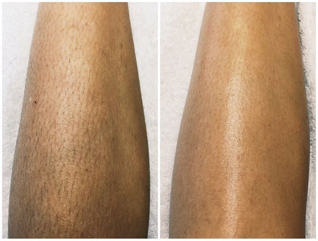 Body sugaring hair removal - skin is left glowing... softer and healthier than ever! #sugaring #bodysugaring #hairremoval #waxing #beauty