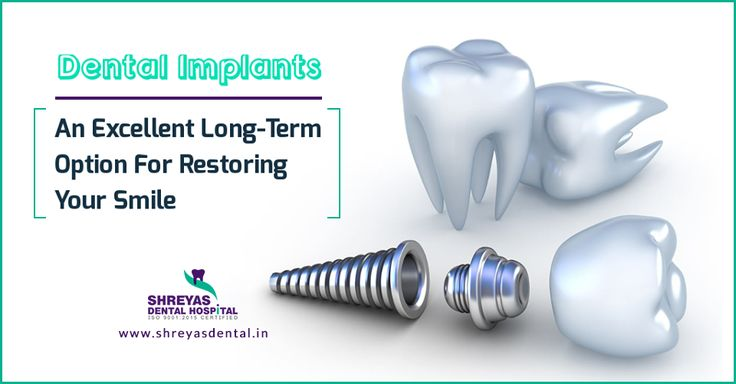 #Dentalimplants are used to replace missing roots. They are also used to support your artificial #teeth. No more delay hurry up today! Click here: http://bit.ly/2lJLQa4