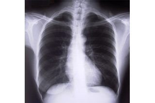 How to Recover From Pneumonia   eHow