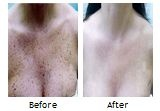 Tired of freckles… Green laser light is highly effective for removing unwanted…