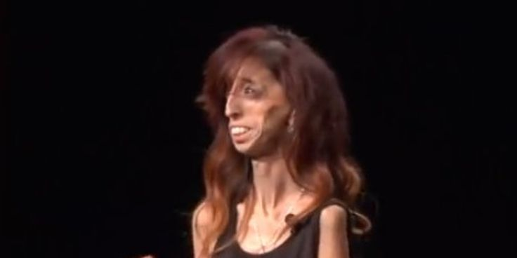 Labeled 'World's Ugliest Woman,' Motivational Speaker Turns Hate Into Love  #Bulling #CyberBully