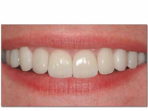 CEREC - ząb na jednej wizycie #CEREC #warszawa #protetyka #DeClinic #bez_wycisku #korona #most #licowka #zdrowie #usmiech #dentysta #stomatolog #estetyka www.declinic.pl