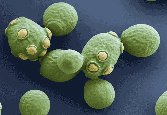 LAMBIC: approfondimento su lieviti e batteri selvaggi – Parte 8