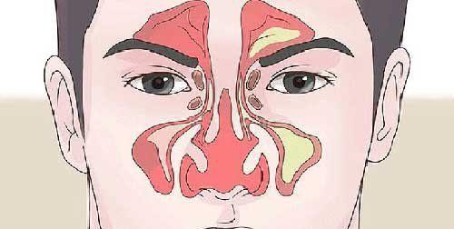 Quando si arriva ad autunno e con l'inverno alle porte, il naso chiuso è un disturbo sempre più diffuso e, purtroppo, fastidioso. Ecco, quindi, che può …