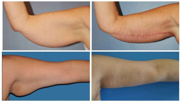 Arm liposuction results 2 – Liposuction before and after