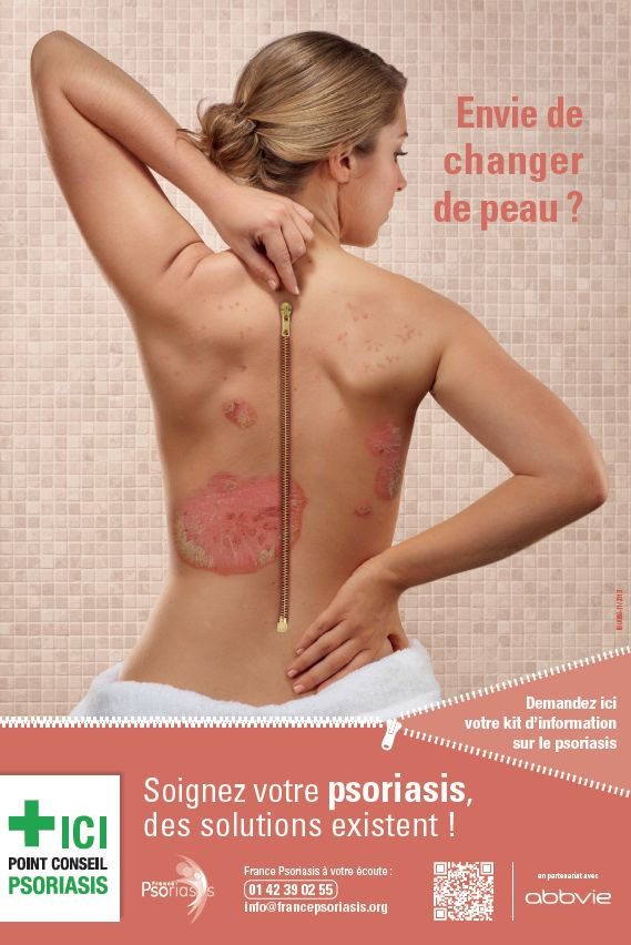 Looking for online definition of psoriasis nummularis in the Medical Dictionary 1