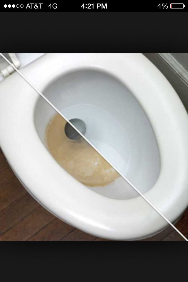 Tough Toilet Stains?? Use Vinegar Mix To Remove!!!In Spray Bottle Combine   Half Vinegar  Half Water   (Mix)  Then add three drops of BLUE Dawn dish soap  (Mix again) and cover spray bottle.  Spray toilet and let sit at least 15 min Scrub with brush then flush  Repeat step for really bad ring stains and BOOM JUST LIKE NEW!!