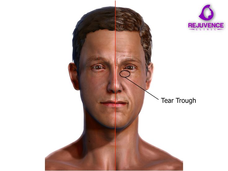 Hyaluronic acid dermal fillers are the first line treatment for addressing the tear trough region. Small injected deposits of filler into the volume depleted parcels of fat help to re-establish the youthful contour around the under eye region and reduce the extent of the tear trough region.