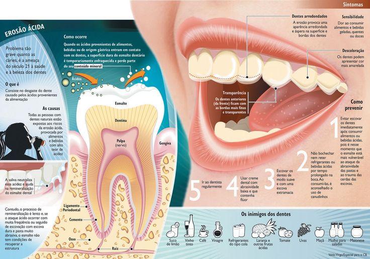 Erosão Ácida ameaça a saúde bucal - Blog   DuoOdonto Dental Stylist