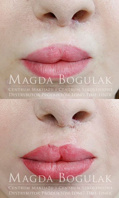 Jak może pomóc makijaż permanentny osobom po rozszczepie wargi i podniebienia? Można zatuszować bliznę nad ustami, wyrównać asymetrię, odbudować czerwień wargową. Można zdziałać bardzo wiele! Dziś przykład makijażu permanentnego ust u osoby z tzw. zajęczą wargą. W tym wypadku poprawialiśmy nieudany makijaż po innym salonie. Wyrównaliśmy asymetrię, odbudowaliśmy serduszko ust i zatuszowaliśmy bliznę pod nosem. Wyszło pięknie! Co o tym sądzicie?