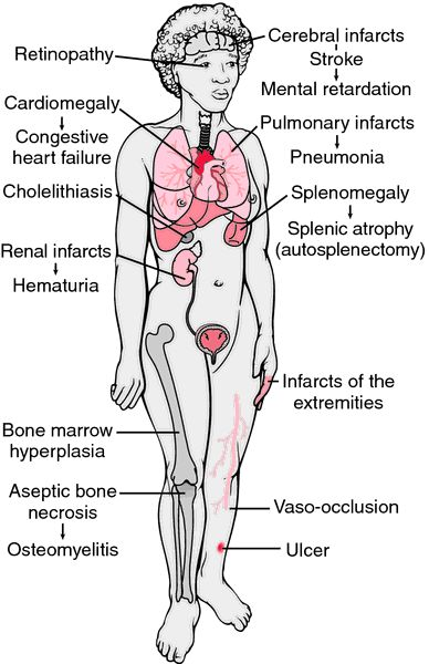 These are some of the complications caused by sickle cell disease. What other conditions are caused by sickle cell disease?