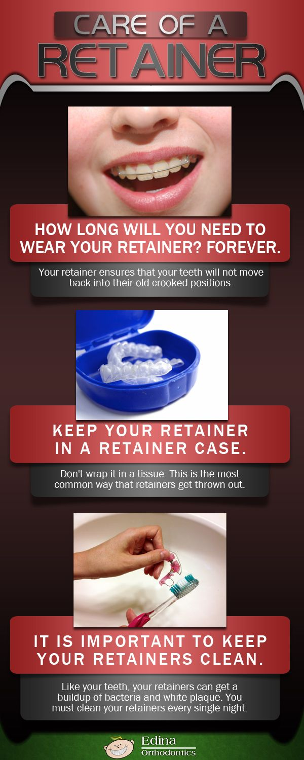 Infographic: Simple Steps to take Care of a Retainer after Orthodontic Treatment #edinaortho #orthodontic #dentalcare