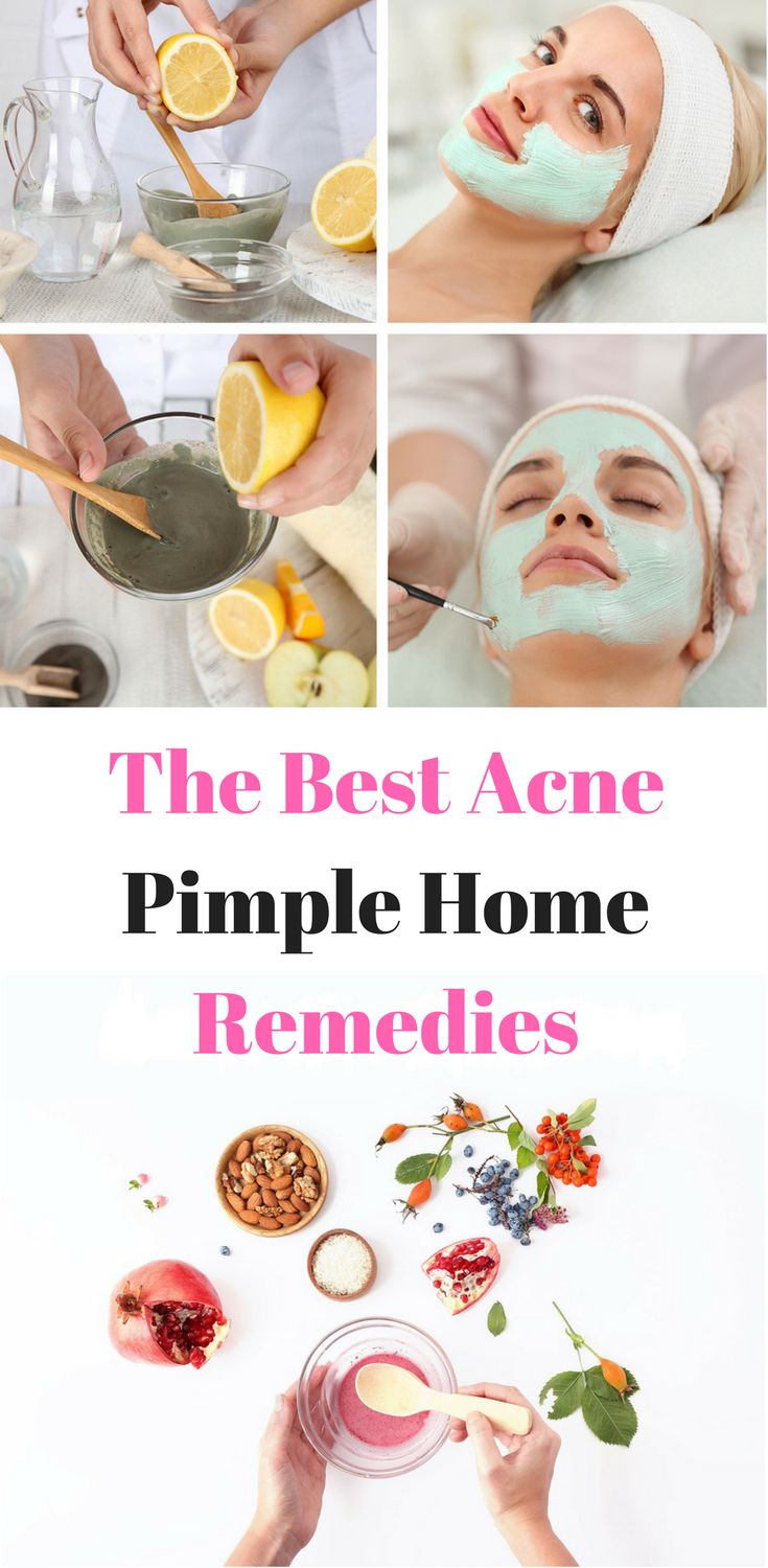The Best Acne Pimple Home Remedies
