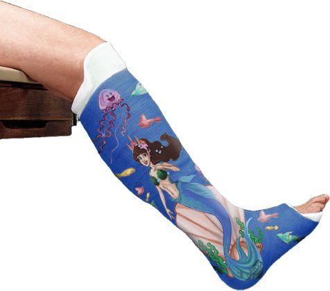 47 best cast decorations images on pinterest bones for Arm cast decoration ideas