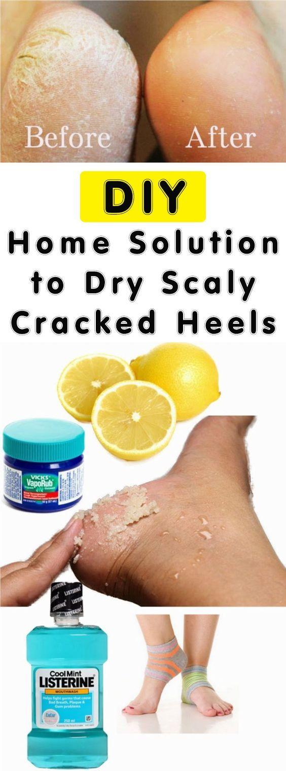 #cracked #heels #beauty